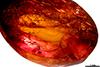 http://mczbase.mcz.harvard.edu/specimen_images/entomology/paleo/large/PALE-27695_Isoptera_1.jpg