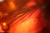 http://mczbase.mcz.harvard.edu/specimen_images/entomology/paleo/large/PALE-8292_Mycetophilidae_2.jpg