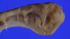 http://mczbase.mcz.harvard.edu/specimen_images/fish/large/160673_Mitsukurina_owstoni_U_jaw_anterior.jpg